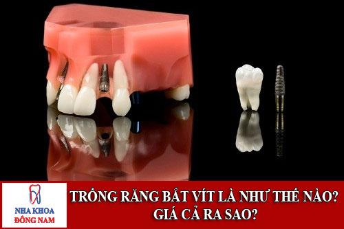 Trồng răng bắt vít là như thế nào