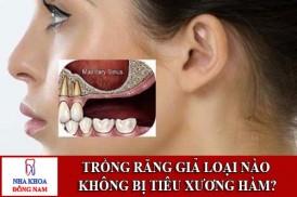 Trồng răng giả loại nào không bị tiêu xương hàm