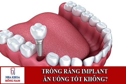 Trồng răng Implant ăn uống tốt không