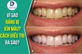 Vì sao răng bị xỉn màu? Cách điều trị ra sao?