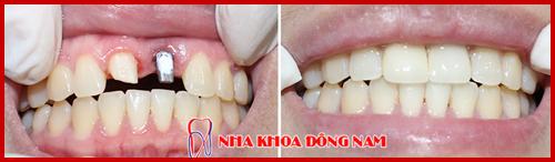 cấy ghép implant phục hồi răng cửa bị mất 1