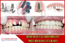 cấy ghép implant phục hồi răng cửa bị mất