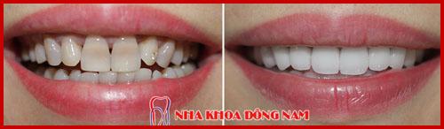 hình ảnh bọc răng sứ 2 hàm bằng sứ hi-zirconia 1