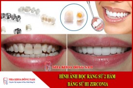 hình ảnh bọc răng sứ 2 hàm bằng sứ hi-zirconia