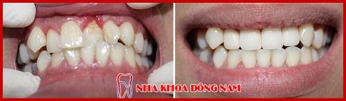 hình ảnh bọc răng sứ điều chỉnh hàm răng bị nhấp nhô 1