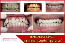 hình ảnh bọc răng sứ điều chỉnh hàm răng bị nhấp nhô