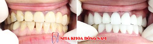 trường hợp khách hàng bọc răng sứ cho răng bị đen viền nướu 1