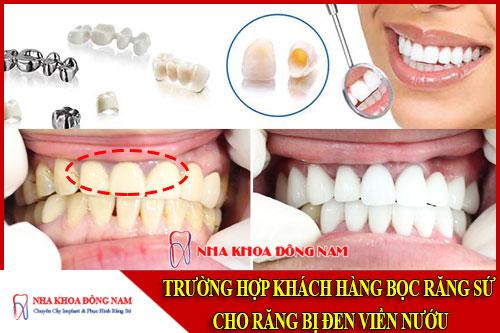trường hợp khách hàng bọc răng sứ cho răng bị đen viền nướu