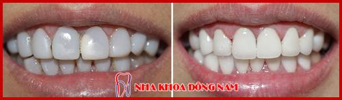 bọc răng sứ cho răng nhiễm kháng sinh 1