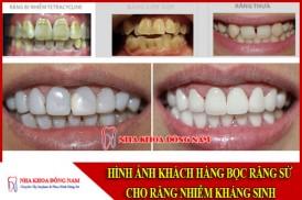 bọc răng sứ cho răng nhiễm kháng sinh