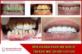 bọc răng sứ cho răng mọc lộn xộn và ố vàng