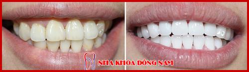 hình ảnh bọc răng sứ cho răng xỉn màu