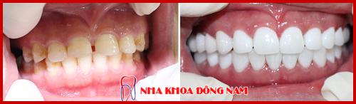 bọc răng sứ hai hàm bằng sứ cao cấp hi-zirconia 1
