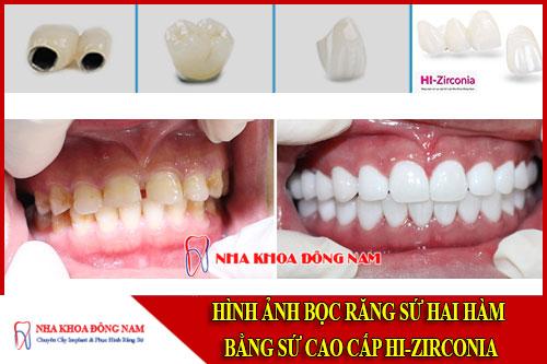 bọc răng sứ hai hàm bằng sứ cao cấp hi-zirconia