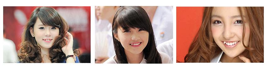 dap-rang-khenh-tai-nha-khoa-dong-nam