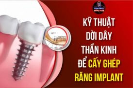 Kỹ Thuật Dời Dây Thần Kinh Để Cấy Ghép Răng Implant