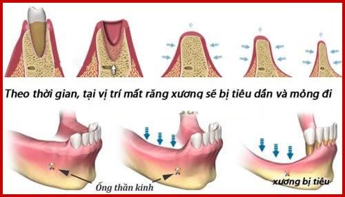 kỹ thuật dời dây thần kinh để cấy ghép răng implant 1