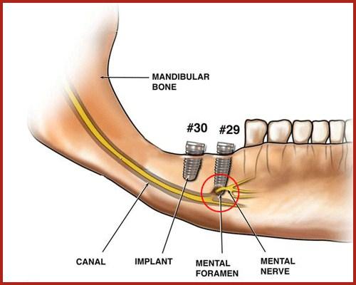 kỹ thuật dời dây thần kinh để cấy ghép răng implant 2