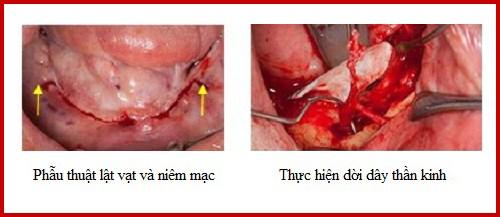 kỹ thuật dời dây thần kinh để cấy ghép răng implant 5