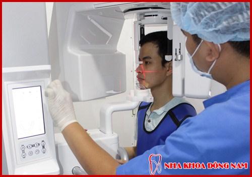 kỹ thuật dời dây thần kinh để cấy ghép răng implant 9