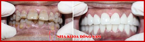 phục hình răng sứ cho răng nhiễm màu kháng sinh 1