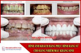 phục hình răng sứ cho răng nhiễm màu kháng sinh