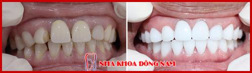thay răng sứ kim loại thành răng toàn sứ cao cấp hi-zirconia cho răng nhiễm màu 1