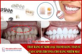 thay răng sứ kim loại thành răng toàn sứ cao cấp hi-zirconia cho răng nhiễm màu