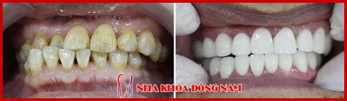 hình ảnh phục hình 20 răng sứ zirconia cho răng bị ố vàng 1