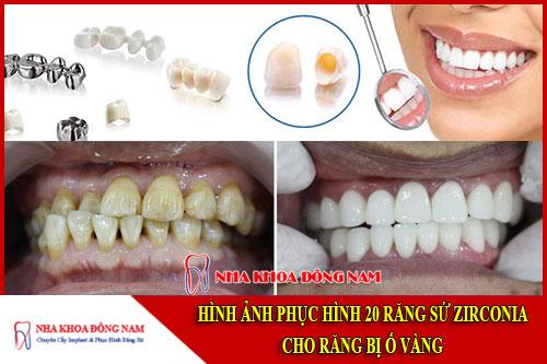 hình ảnh phục hình 20 răng sứ zirconia cho răng bị ố vàng