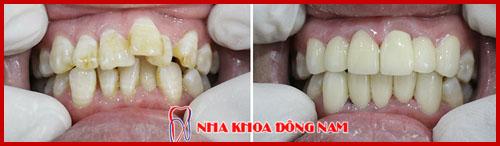 bọc răng sứ cho răng mọc lộn xộn 1