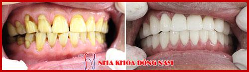 bọc răng sứ hi-zirconia 2 hàm cho răng bị vàng răng và khuyết cổ răng 1