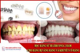 bọc răng sứ hi-zirconia 2 hàm cho răng bị vàng răng và khuyết cổ răng