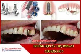 hình ảnh cấy 1 trụ implant cho răng số 5