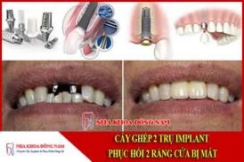 cấy ghép 2 trụ implant phục hồi 2 răng cửa bị mất