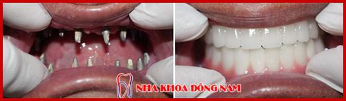 cấy ghép implant 2 hàm cho bệnh nhân mất hết răng 1