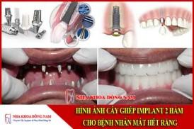 cấy ghép implant 2 hàm cho bệnh nhân mất hết răng