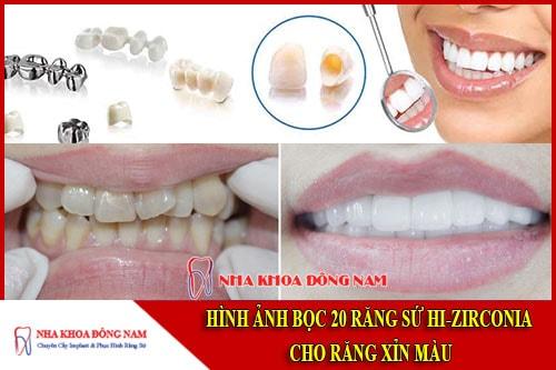 Hình ảnh bọc răng sứ tại nha khoa đông nam