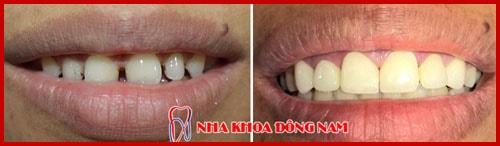 Hình ảnh bọc răng sứ cho răng bị thưa 1