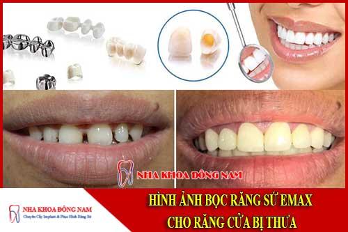 Hình ảnh bọc răng sứ cho răng bị thưa