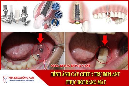 hình ảnh cấy ghép 2 trụ implant phục hồi răng mất