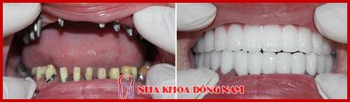 hinh-anh-khach-hang-trong-8-tru-implant-va-phuc-hinh-rang-su-1