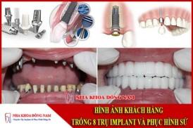 Hình ảnh cấy ghép 8 trụ implant và phục hình răng sứ