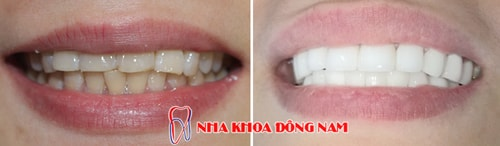 Hình ảnh phục hình sứ cho răng bị ố vàng 1