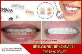 Hình ảnh phục hình sứ cho răng bị ố vàng