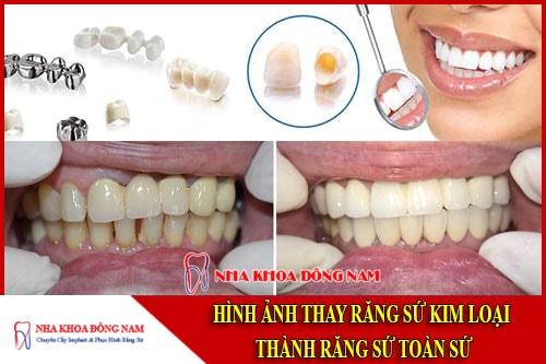 Hình ảnh thay răng sứ kim loại bằng răng toàn sứ