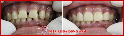 mặt dán sứ laminate cho răng thưa 1