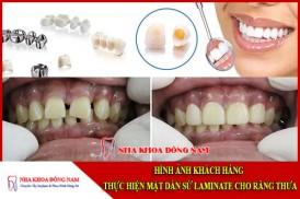 mặt dán sứ laminate cho răng thưa
