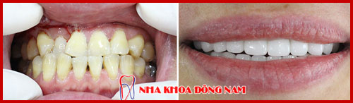 trường hợp phục hình 2 hàm răng sứ hi-zirconia 1