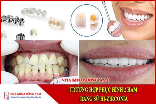 trường hợp phục hình 2 hàm răng sứ hi-zirconia